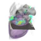 Deep Learning Enables Dual Screening for Cancer and Cardiovascular Disease